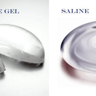 Breast Implant Composition